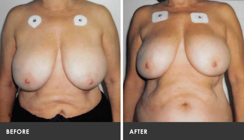 Atlanta breast reduction scarless are definitely
