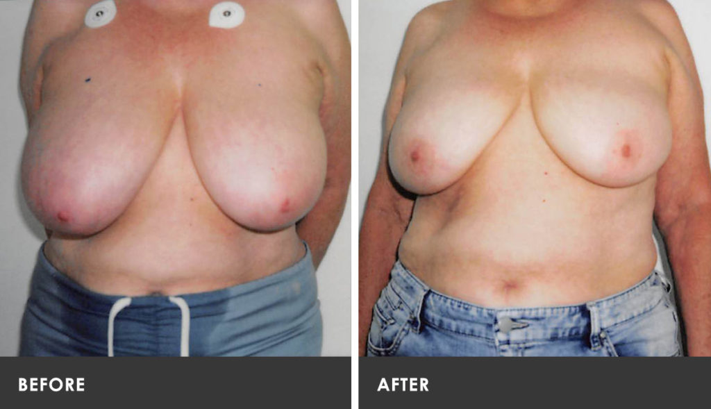 scarless breast reduction before and after Downs
